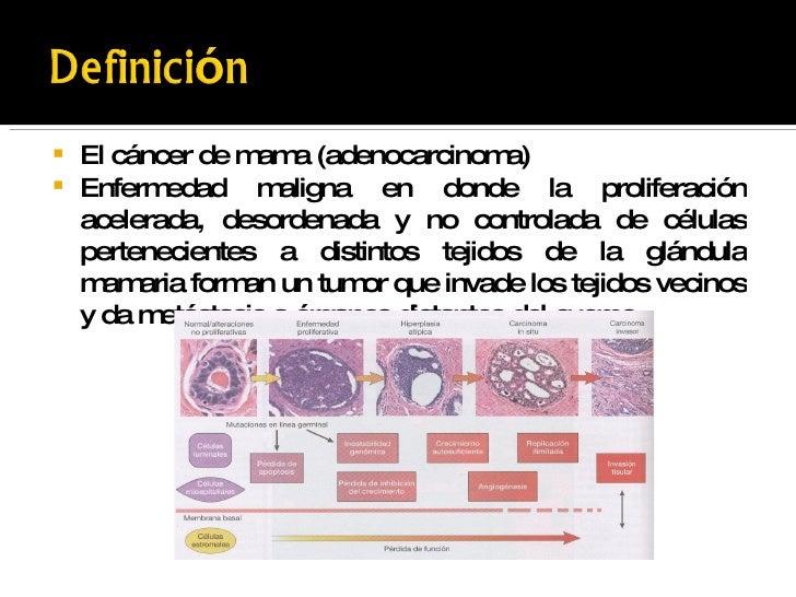 Metastasis Cast patologia maligna de m...