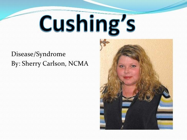 Cushing's powerpoint