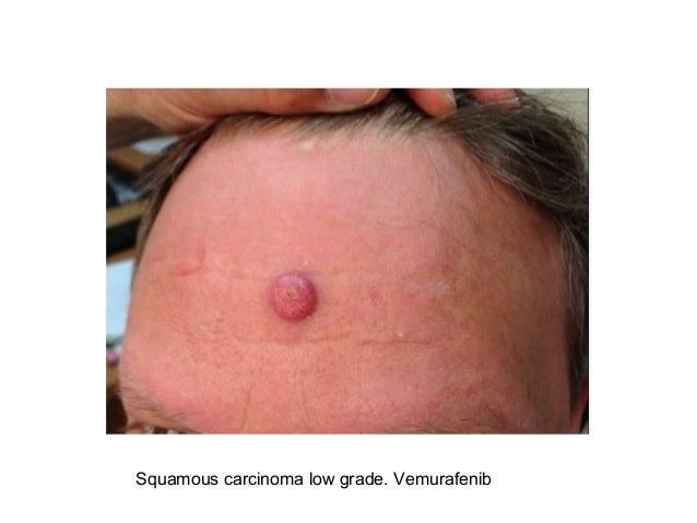Ipilimumab and BRAF inhibitors cutaneous toxicity