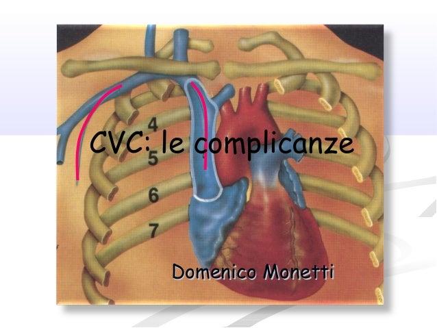 Domenico MonettiDomenico Monetti CVC: le complicanze
