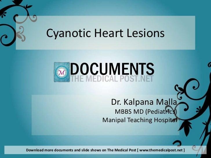 Cyanotic Heart Diseases