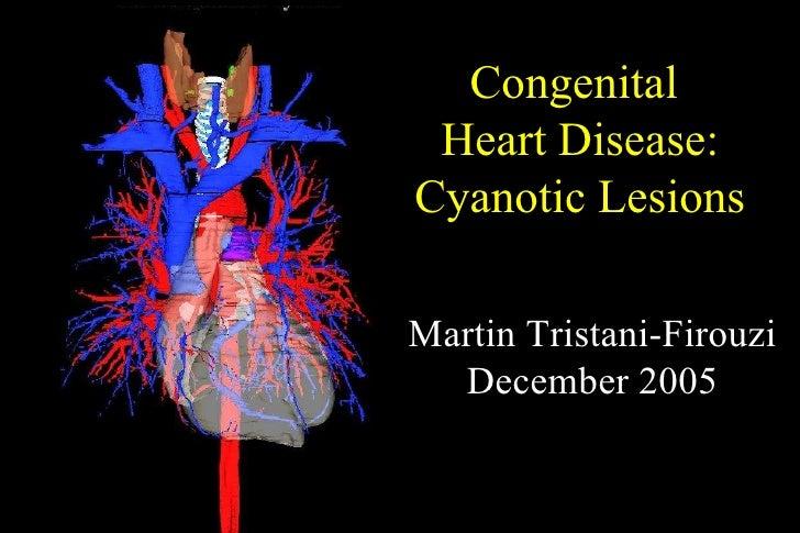 Congenital  Heart Disease: Cyanotic Lesions Martin Tristani-Firouzi December 2005