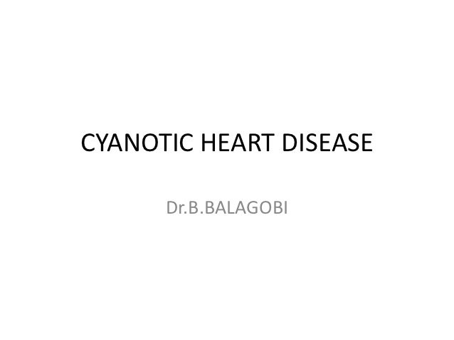 CYANOTIC HEART DISEASE      Dr.B.BALAGOBI