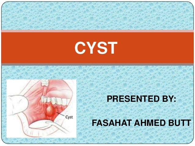 Periodontology Cyst