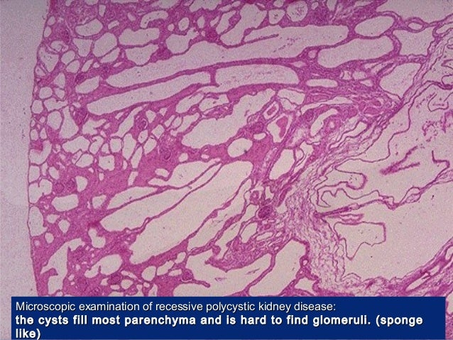 The gallery for --> Autosomal Recessive Polycystic Kidney ...