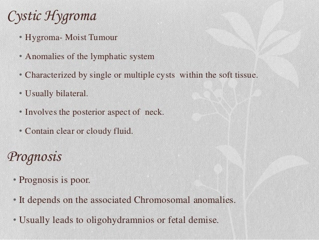Cystic hygroma dt-2