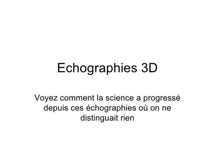 Echographies 3D Voyez comment la science a progressé depuis ces échographies où on ne distinguait rien