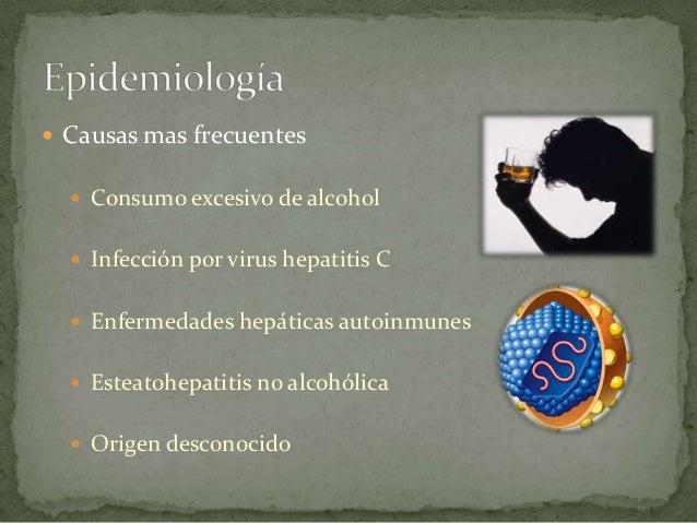 antibiotics online spain