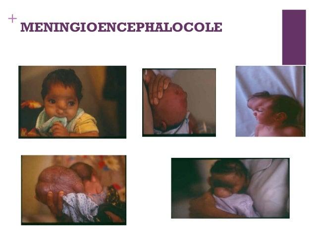 Database of spina bifida occulta pictures, meningocele pictures, myelomeningocele pictures and encephalocele pictures