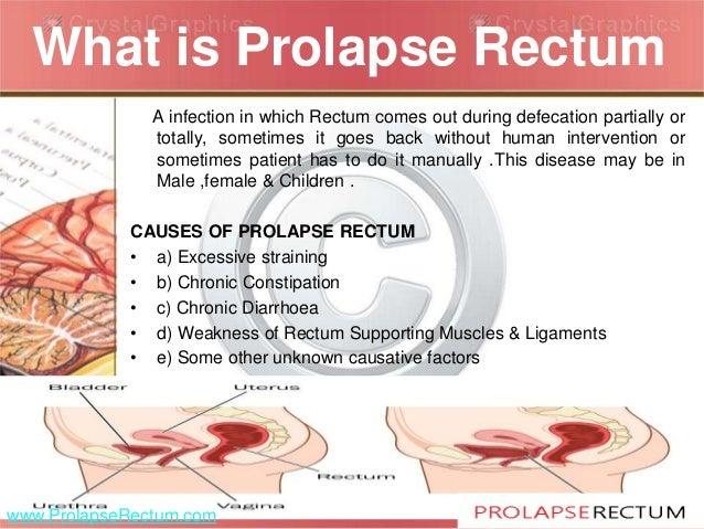 Urethral Prolapse Human Rectal Prolapse Home R...