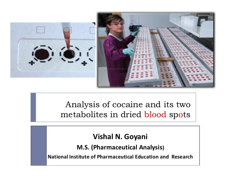 Analysis of cocaine and its two     metabolites in dried blood spots                  Vishal N. Goyani           M.S. (Pha...