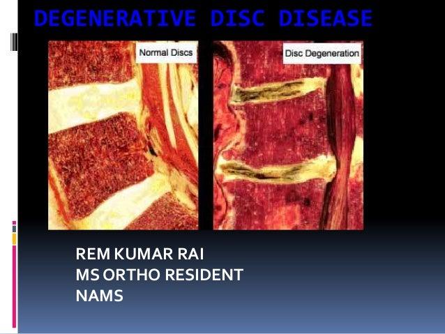 DEGENERATIVE DISC DISEASE  REM KUMAR RAI MS ORTHO RESIDENT NAMS