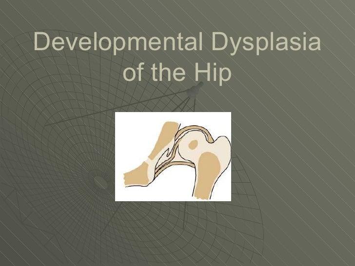 Developmental Dysplasia of the Hip and Ultrasound