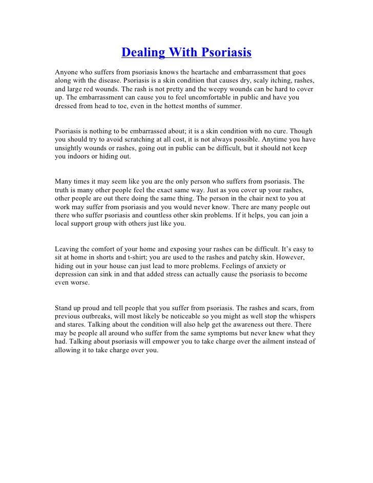 Dealing with psoriasis