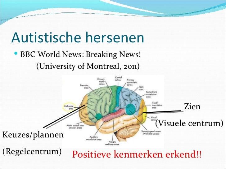 klokhuis hersenen
