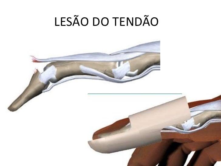 http://image.slidesharecdn.com/dedoemmartelo-120103151639-phpapp01/95/dedo-em-martelo-3-728.jpg?cb=1325604021