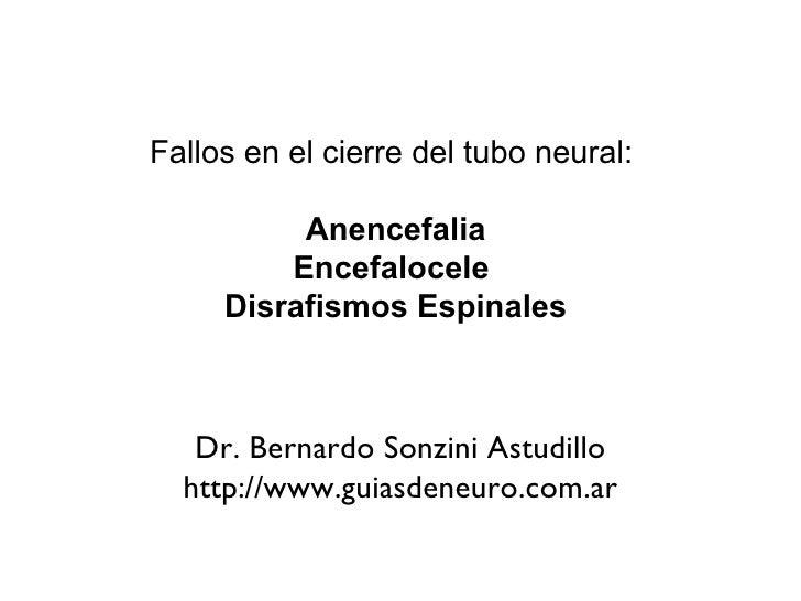 Fallos en el cierre del tubo neural:  Anencefalia Encefalocele  Disrafismos Espinales Dr. Bernardo Sonzini Astudillo http:...