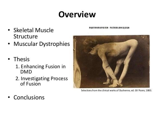 muscular dystrophy essay
