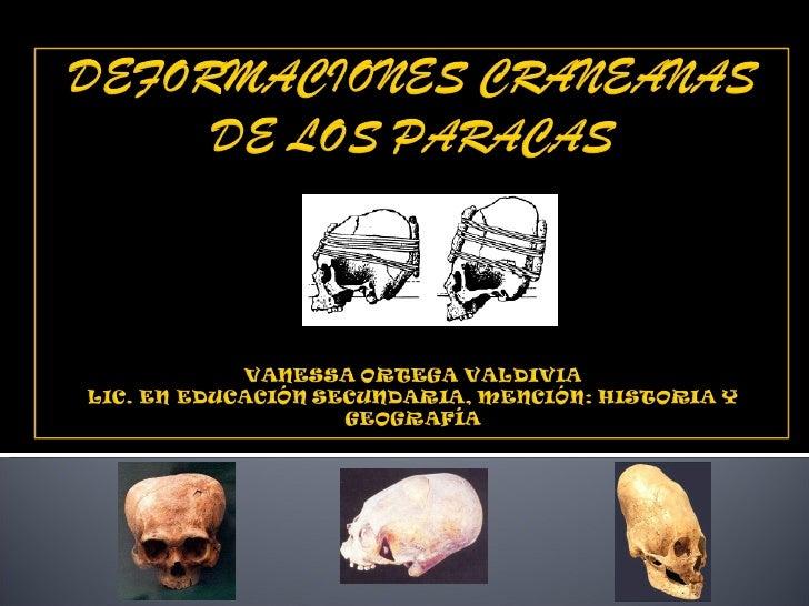 Deformaciones craneanas de los paracas