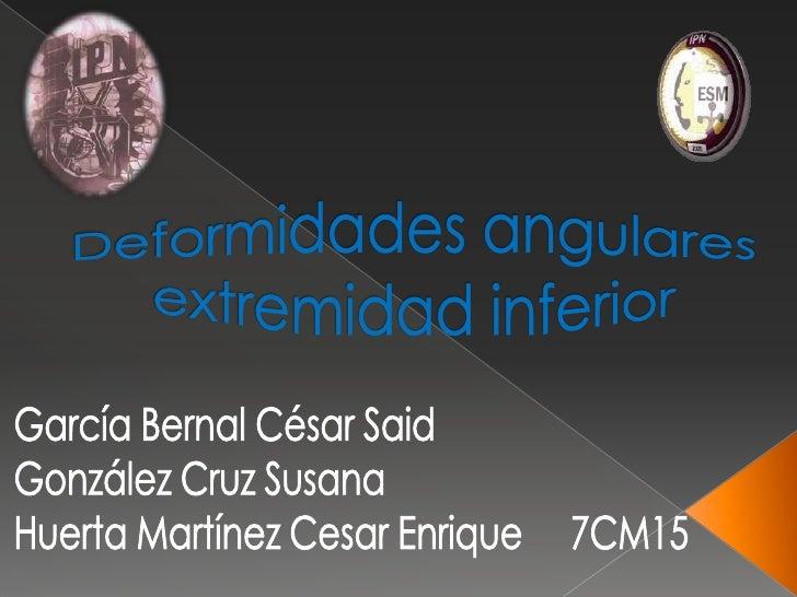 Para comprender las distintasalteraciones de los miembros inferioreses necesario conocer el desarrollo intray extrauterino...