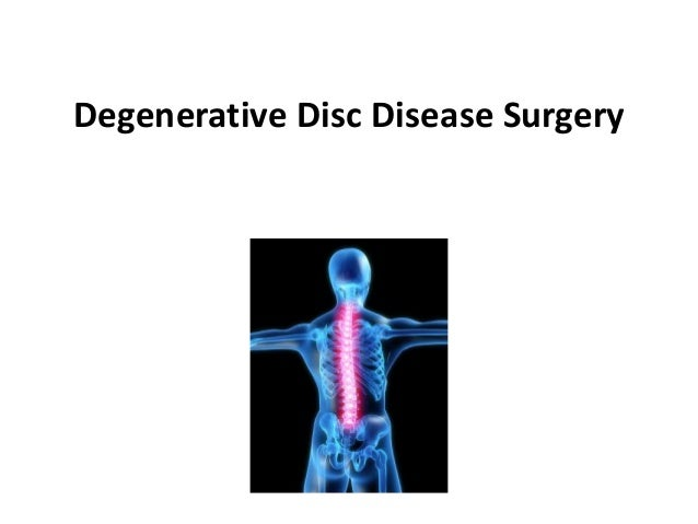 Degenerative Disc Disease Surgery