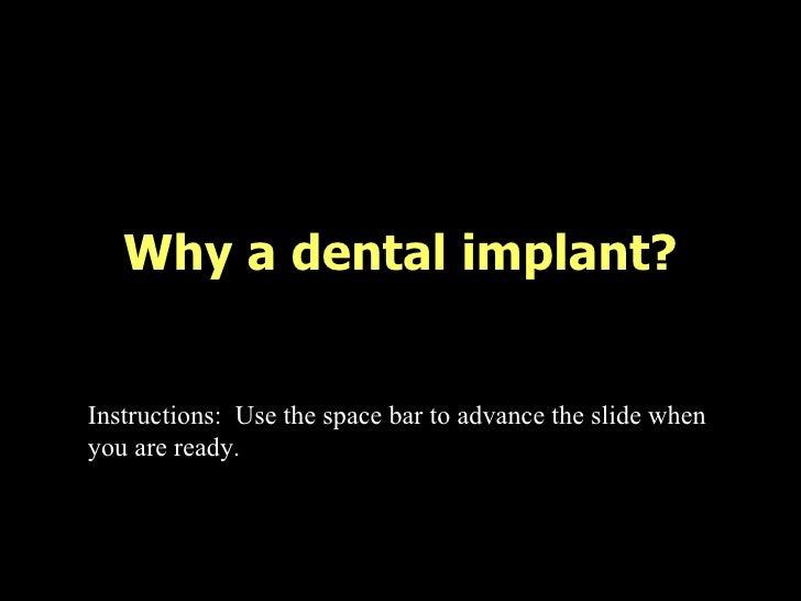 Dental implant-presentation-1231964233172251-3