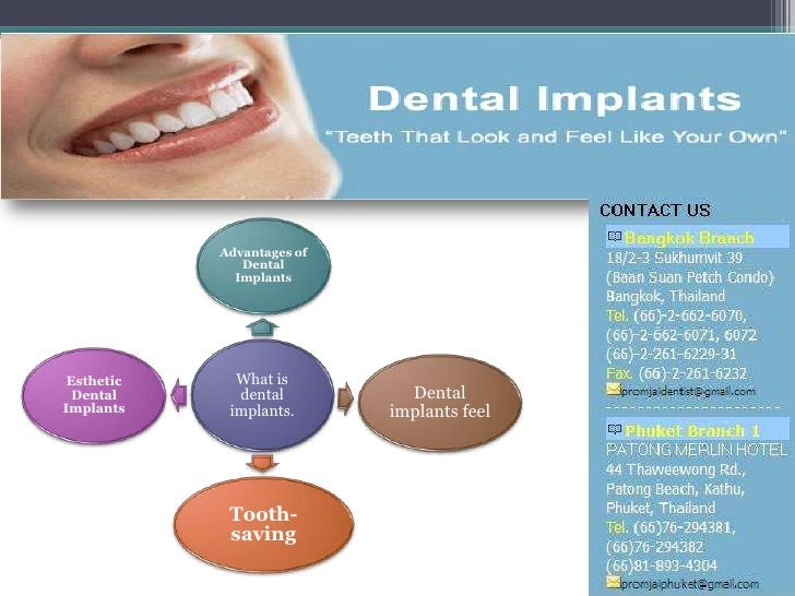 Advantages of               Dental              Implants Esthetic     What is  Dental      dental          DentalImplants ...
