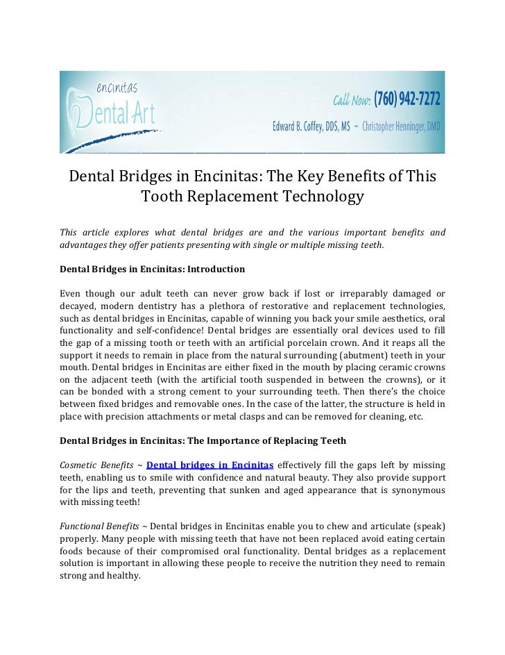 Dental Bridges in Encinitas: The Key Benefits of This            Tooth Replacement TechnologyThis article explores what de...