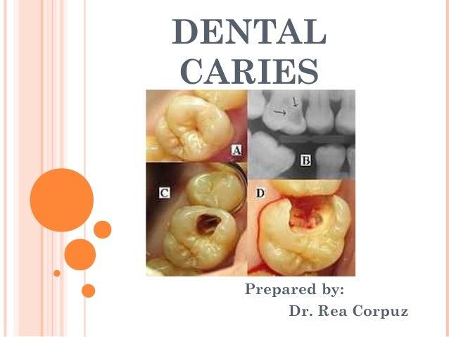DENTALCARIES  Prepared by:       Dr. Rea Corpuz