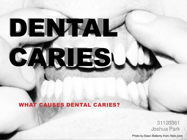 DENTALCARIESWHAT CAUSES DENTAL CARIES?                                             31120361                               ...
