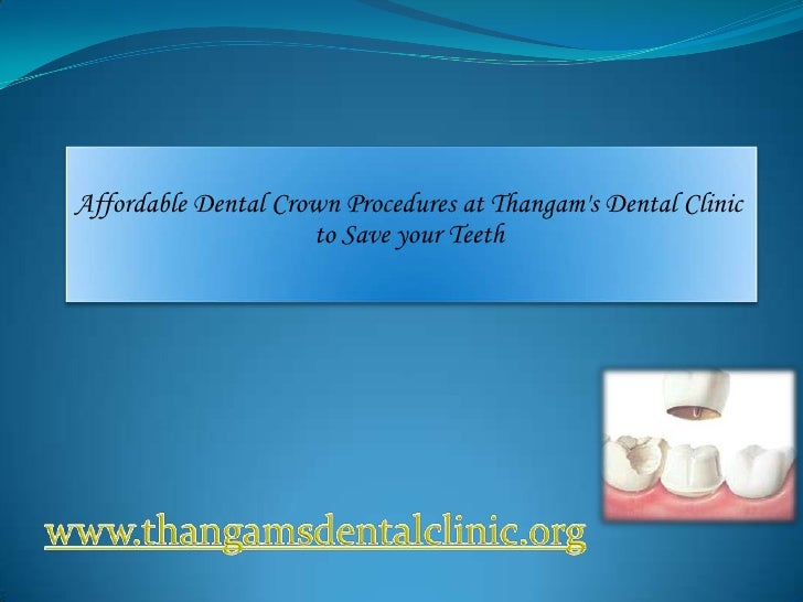 Affordable Dental Crown Procedures at Thangams Dental Clinic                     to Save your Teeth