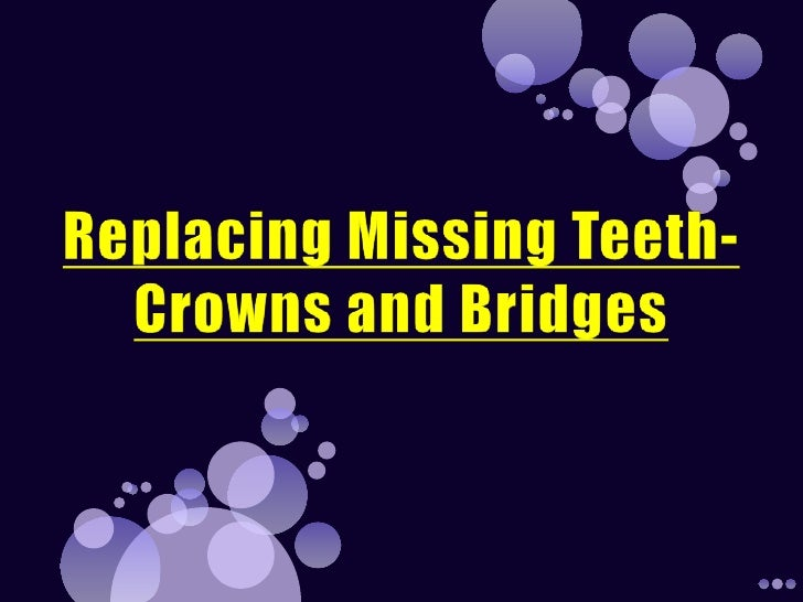 For More Information on Dental crowns New York City          Log On To -http://dredalat.com/crown-and-bridge