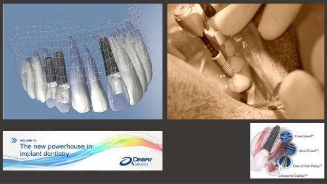 Dental i̇mplant açıklama sunumu