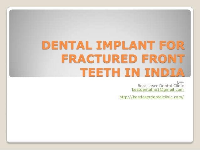 DENTAL IMPLANT FOR FRACTURED FRONT TEETH IN INDIA By- Best Laser Dental Clinic bestdentalno1@gmail.com http://bestlaserden...