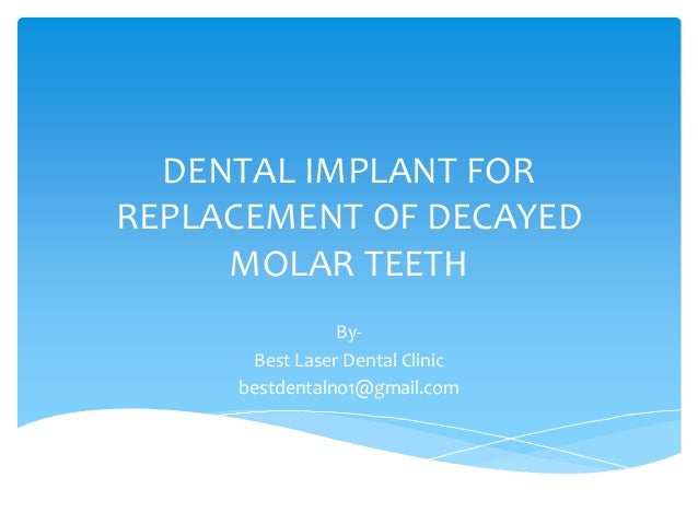 Dental implant for replacement of decayed molar teeth