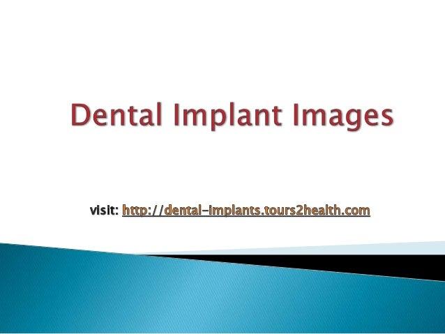 For more Details visit: http://dental-implants.tours2health.com                                                           ...