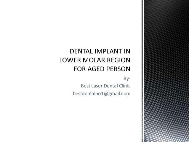 Dental implant in lower molar region for Senior Citizens