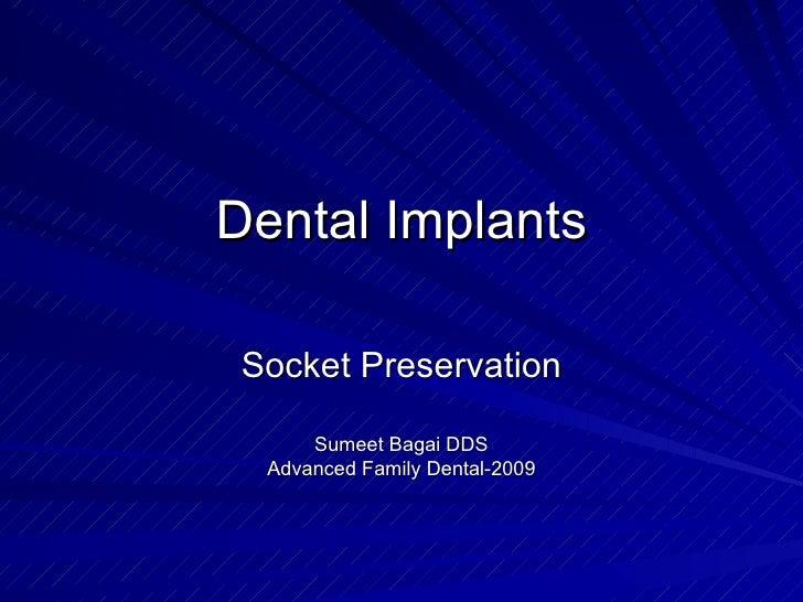 Dental Implants Socket Preservation