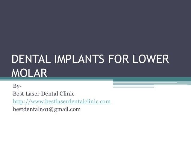 Dental implants for lower molar