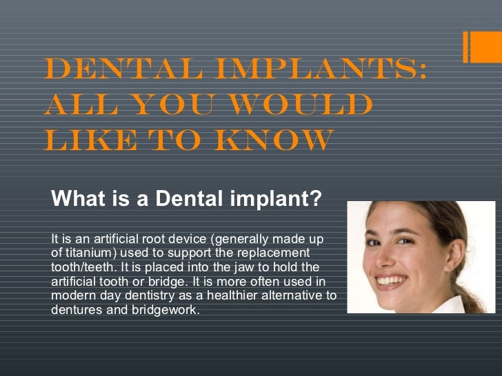 Dental Implants:All you WouldLike to KnowWhat is a Dental implant?It is an artificial root device (generally made upof tit...