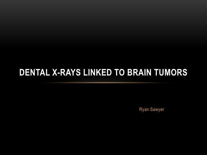 DENTAL X-RAYS LINKED TO BRAIN TUMORS                         Ryan Sawyer