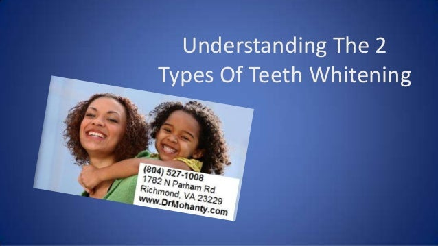 Understanding The 2 Types Of Teeth Whitening