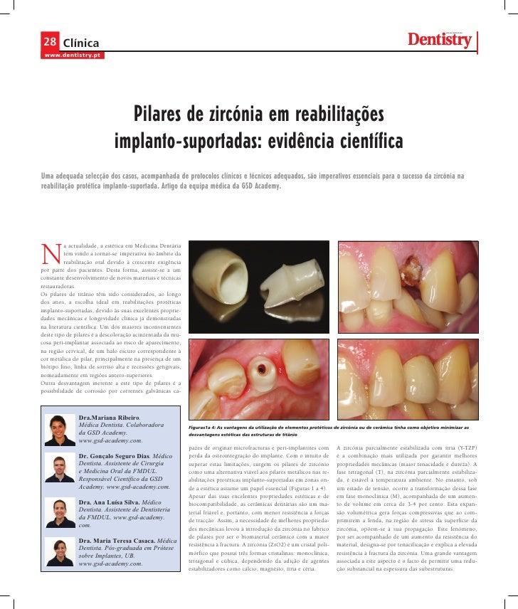 Pilares de zircónia em reabilitações implanto-suportadas: evidência científica