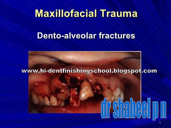 Maxillofacial Trauma Dento-alveolar fractures dr shabeel p n www.hi-dentfinishingschool.blogspot.com