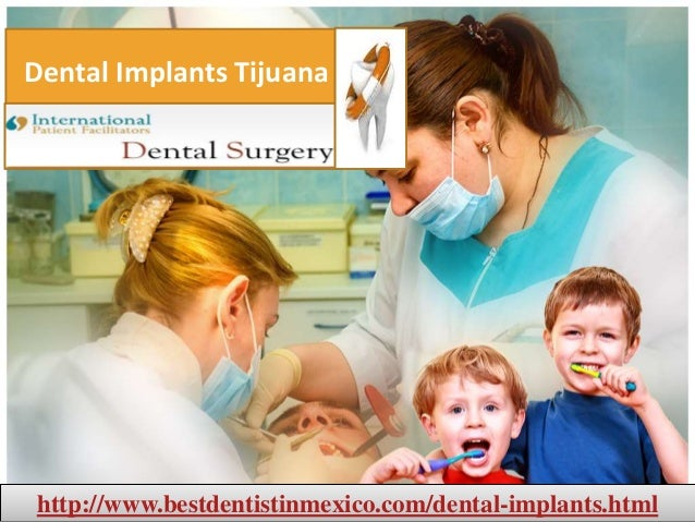 Dental implants in Mexico,Cancun & Tijuana from best dentists