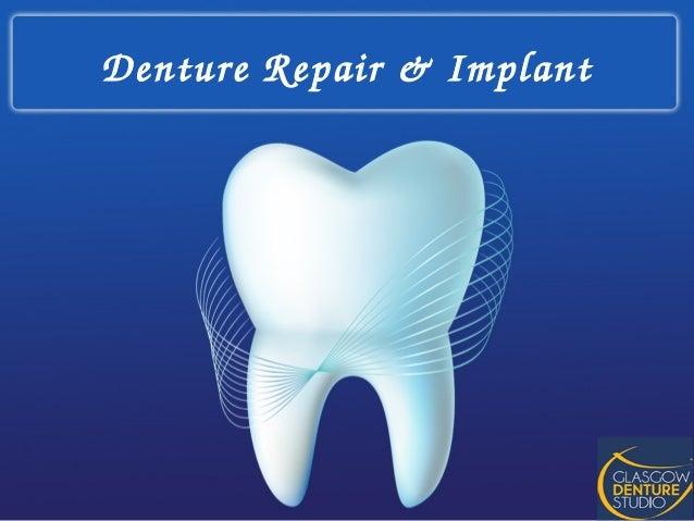 Denture Repair & Implant at Glasgow Denture Studio