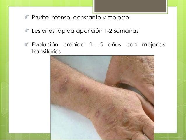 La eccema del dedo índice