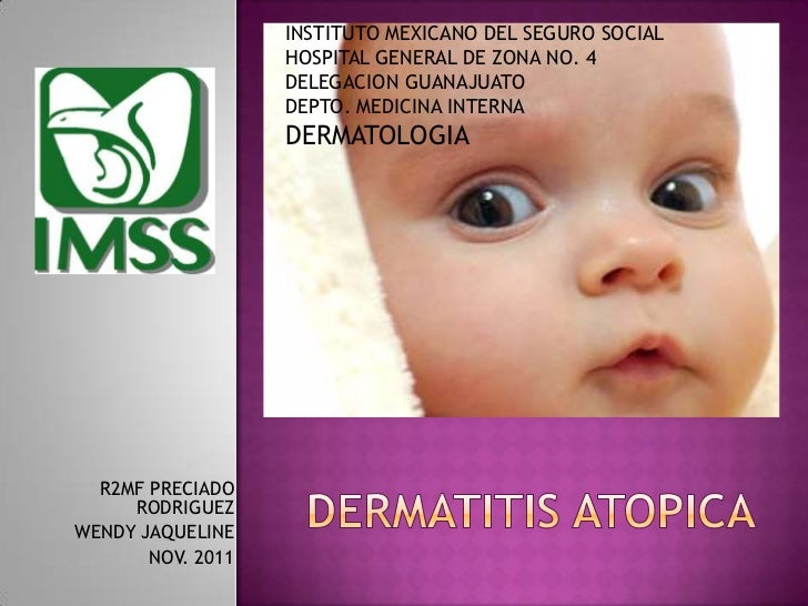 Dermatitis atopica presentacion