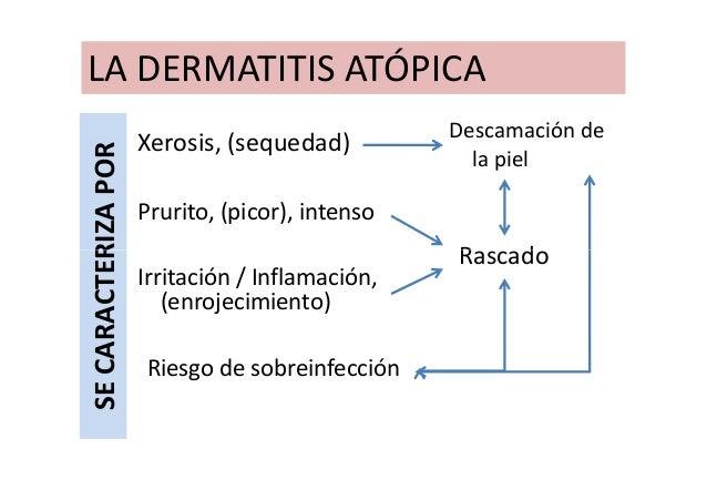 El médico por atopicheskomu a la dermatitis
