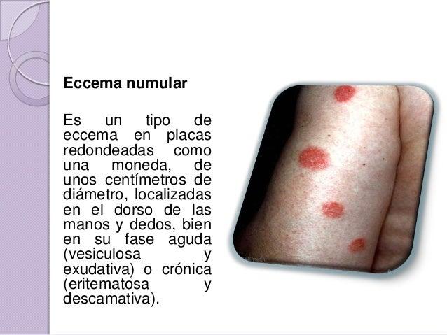 Que se llama neyrodermitom